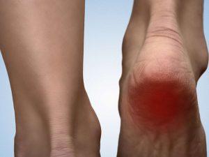 heel-pain-relief